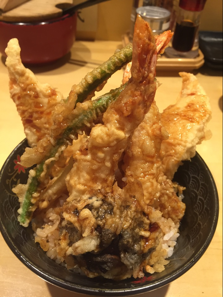 Most Satisfying Tendon Ever